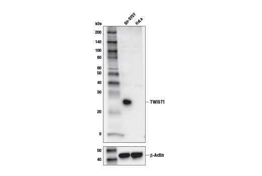 Western Blotting Image 1: TWIST1 (E7E2G) Rabbit mAb