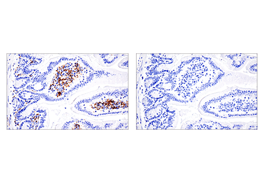 Image 45: Mouse Microglia Marker IF Antibody Sampler Kit