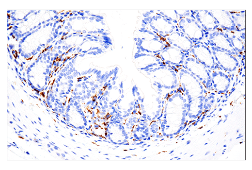 Image 25: Mouse Microglia Marker IF Antibody Sampler Kit