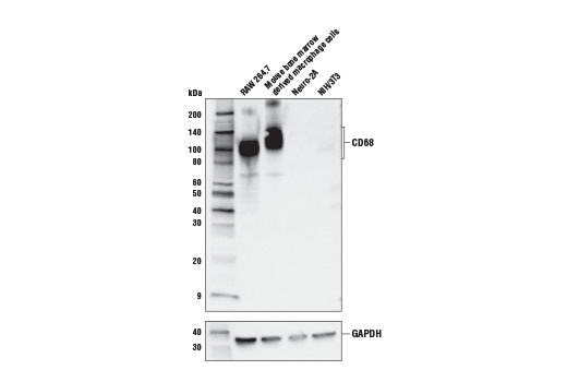 Image 59: Mouse Microglia Marker IF Antibody Sampler Kit
