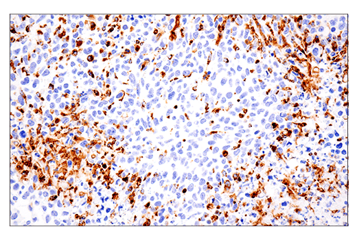 Image 51: Mouse Microglia Marker IF Antibody Sampler Kit
