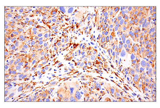 Image 57: Mouse Microglia Marker IF Antibody Sampler Kit