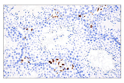 Image 39: Mouse Microglia Marker IF Antibody Sampler Kit