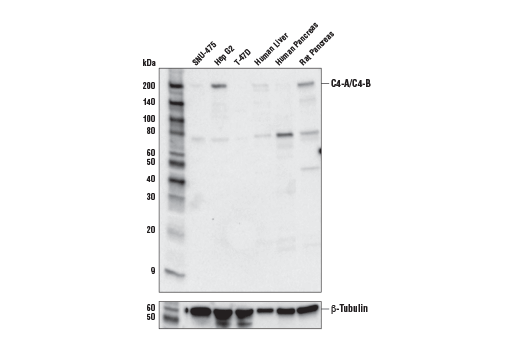 Western Blotting Image 1: Complement C4-A/C4-B (E6J7W) Rabbit mAb