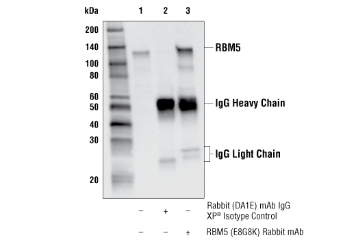 Immunoprecipitation Image 1: RBM5 (E8G8K) Rabbit mAb