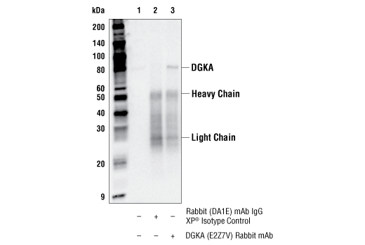 Immunoprecipitation Image 1: DGKA (E2Z7V) Rabbit mAb
