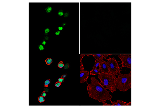 Image 53: Human Exhausted T Cell Antibody Sampler Kit