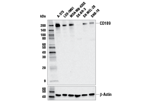 Western Blotting Image 1: CD109 (E4I2V) Rabbit mAb