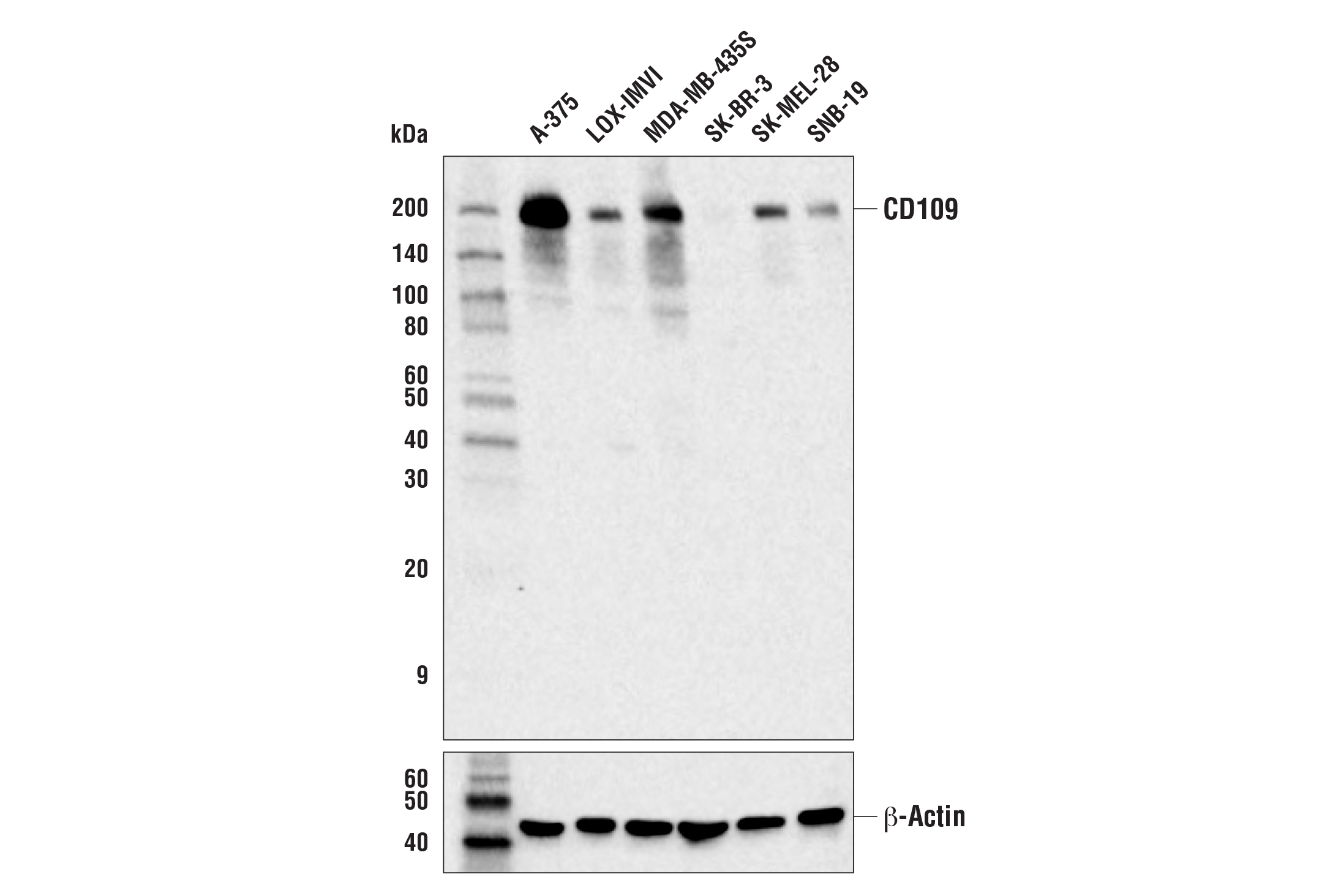 Western Blotting Image 1: CD109 (E8L2W) Rabbit mAb