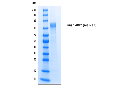 Image 1: Human ACE2 (multimeric) (18-652) Recombinant Protein