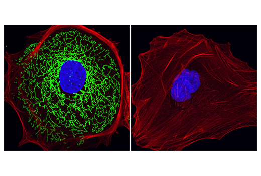 Immunofluorescence Image 1: MTHFD2 (E7A4L) XP® Rabbit mAb