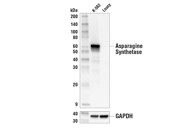 Western Blotting Image 1: Asparagine Synthetase (E6C2C) XP® Rabbit mAb