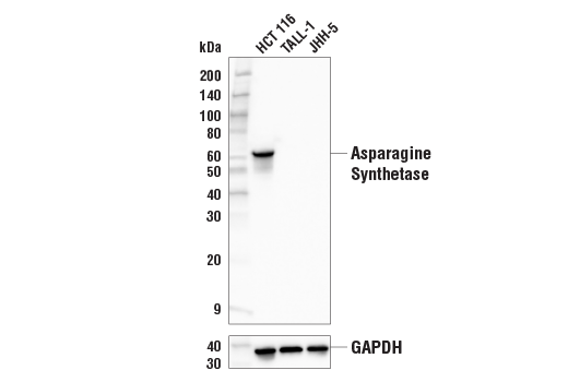 Western Blotting Image 2: Asparagine Synthetase (E6C2C) XP® Rabbit mAb