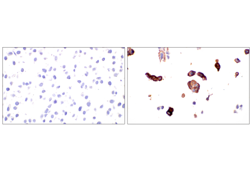 Immunohistochemistry Image 5: SARS-CoV-1/2 Spike Protein (2B3E5) Mouse mAb