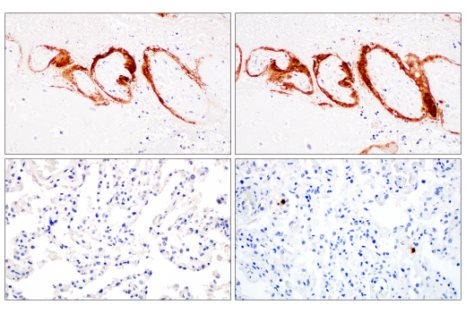 Immunohistochemistry Image 2: SARS-CoV-1/2 Spike Protein (2B3E5) Mouse mAb
