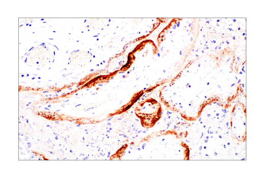 Immunohistochemistry Image 1: SARS-CoV-1/2 Spike Protein (2B3E5) Mouse mAb