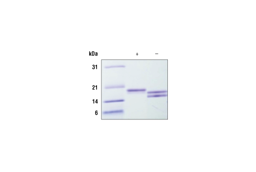 Image 1: Human IL-33 Recombinant Protein