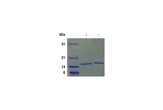 Image 2: Mouse IL-21 Recombinant Protein