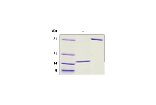 Image 2: Human GDNF Recombinant Protein