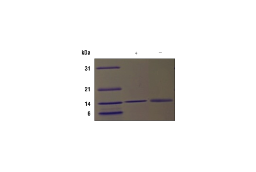 Image 2: Human FLT3L Recombinant Protein