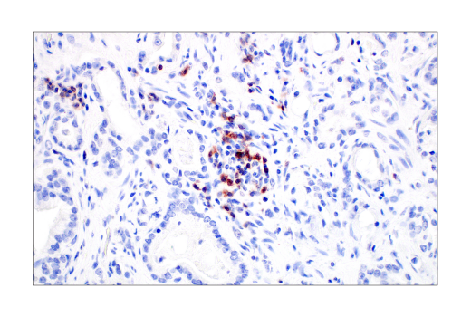 Image 62: Human Exhausted T Cell Antibody Sampler Kit