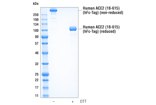 Image 1: Human ACE2 (18-615) Recombinant Protein (hFc-Tag)