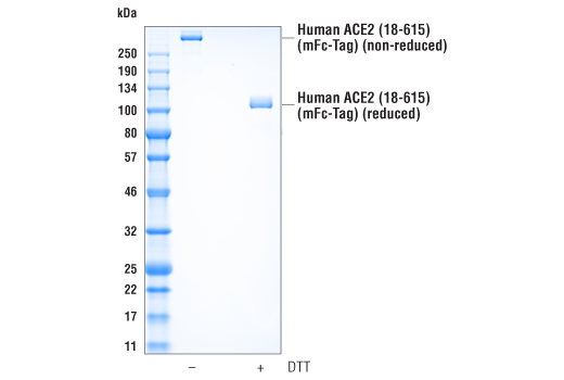 Image 1: Human ACE2 (18-615) Recombinant Protein (mFc-Tag)
