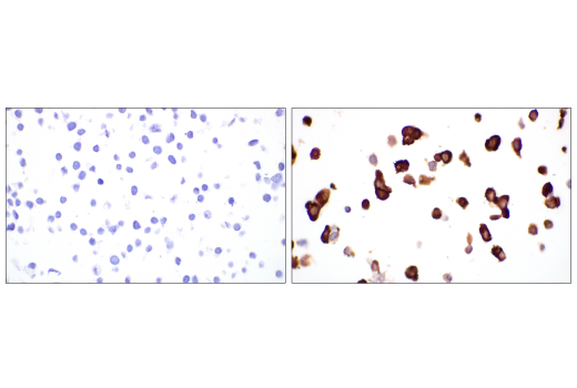 Immunohistochemistry Image 4: SARS-CoV-2 Nucleocapsid Protein (E8R1L) Mouse mAb