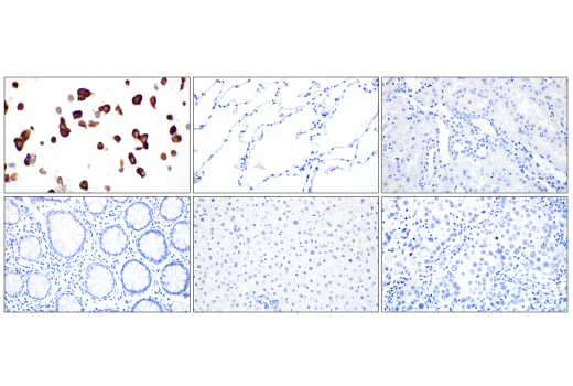 Immunohistochemistry Image 2: SARS-CoV-2 Nucleocapsid Protein (E8R1L) Mouse mAb