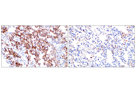 Immunohistochemistry Image 7: SARS-CoV-2 Nucleocapsid Protein (E8R1L) Mouse mAb