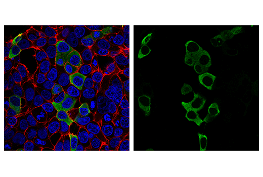Immunofluorescence Image 2: SARS-CoV-2 Nucleocapsid Protein (E8R1L) Mouse mAb