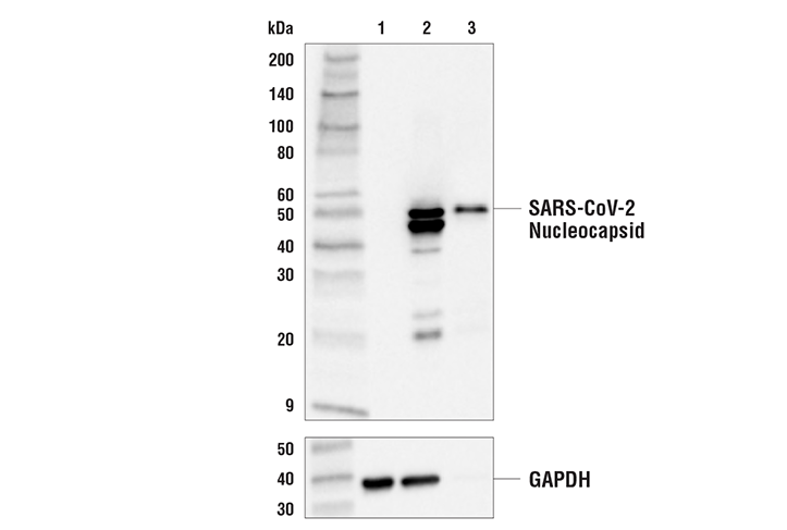 Western Blotting Image 1: SARS-CoV-2 Nucleocapsid Protein (E8R1L) Mouse mAb