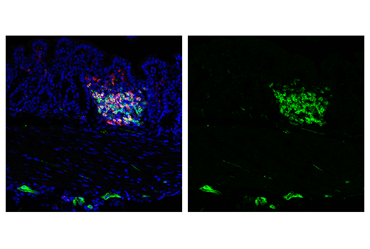 Immunofluorescence Image 3: IL-2Rα/CD25 (E9W2J) XP® Rabbit mAb