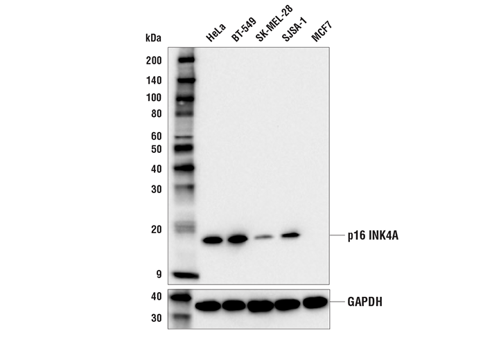 Western Blotting Image 1: p16 INK4A (E6N8P) Rabbit mAb