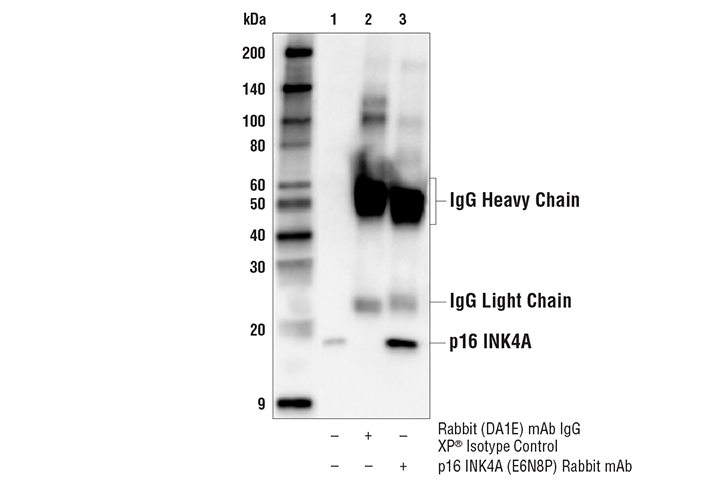 Immunoprecipitation Image 1: p16 INK4A (E6N8P) Rabbit mAb