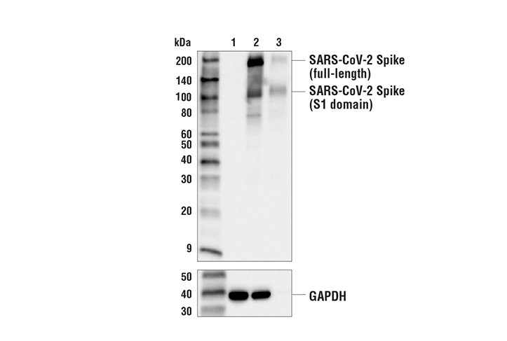 Western Blotting Image 1: SARS-CoV-2 Spike Protein (RBD) (E2T6M) Mouse mAb