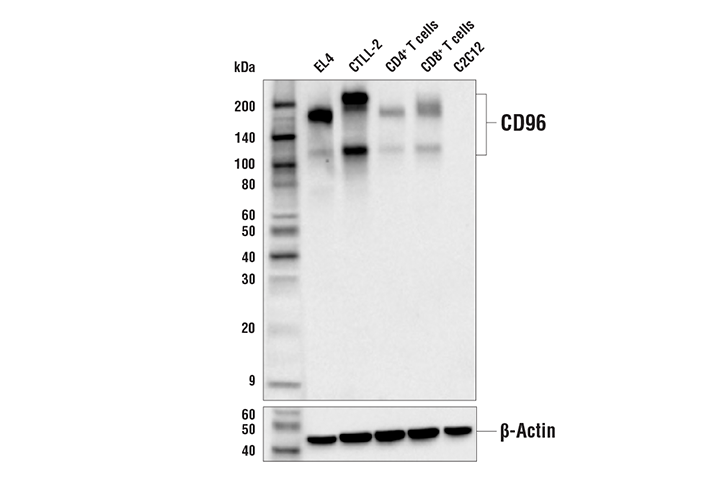 Western Blotting Image 1: CD96 (E4B8Y) Rabbit mAb