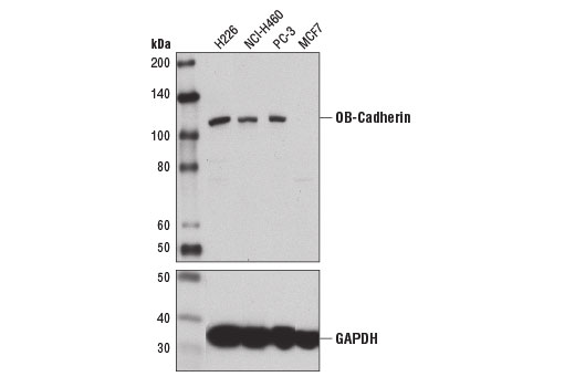 Western blot analysis of extracts from various cell lines using OB-Cadherin (16G5) Mouse mAb (upper) and GAPDH (D16H11) XP<sup>®</sup> Rabbit mAb #5174 (lower). As expected, MCF7 cells are negative for OB-cadherin.