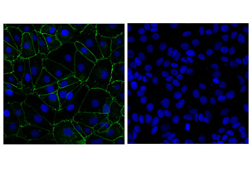 Confocal immunofluorescent analysis of H226 (positive, left) and MCF7 (negative, right) cells using OB-cadherin (16G5) Mouse mAb (green). Blue pseudocolor = DRAQ5<sup>®</sup> #4084 (fluorescent DNA dye).