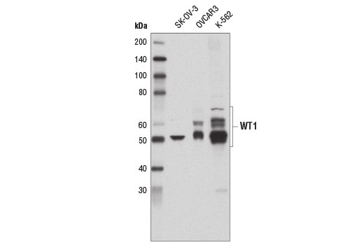 Western blot analysis of extracts from SK-OV-3, OVCAR3, and K-562 cells using WT1 (D6M6S) Rabbit mAb.