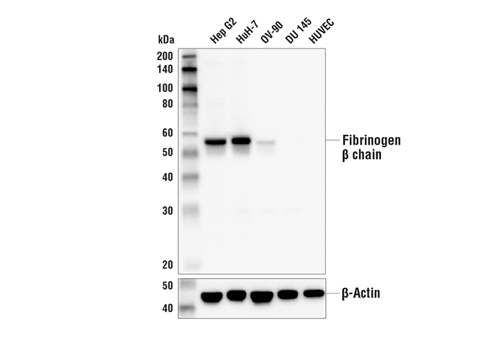 Western Blotting Image 1: Fibrinogen beta chain Antibody