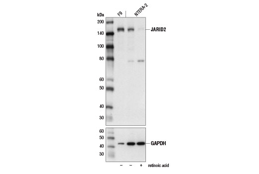 Western blot analysis of extracts from F9 cells and NTERA-2 cells, untreated (-) or treated with retinoic acid (1 μM, 5 d; +) to induce differentiation, using JARID2 (D6M9X) Rabbit mAb (upper) and GAPDH (D16H11) XP<sup>®</sup> Rabbit mAb #5174 (lower). As expected, JARID2 protein levels decrease upon NTERA-2 cell differentiation.
