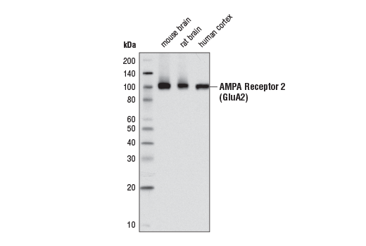 Western blot analysis of extracts from mouse brain, rat brain, and human cortex tissues using AMPA Receptor 2 (GluA2) (E1L8U) Rabbit mAb.