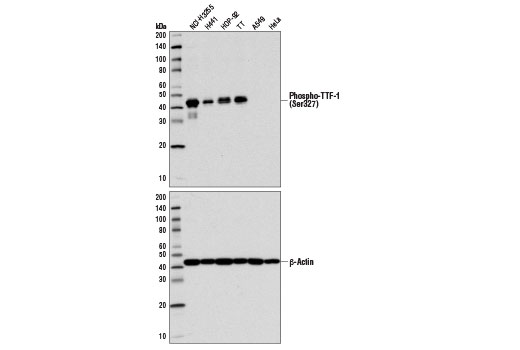 Western blot analysis of extracts from various cell lines using Phospho-TTF-1 (Ser327) Antibody (upper) and β-Actin (D8A7) Rabbit mAb #8457 (lower).