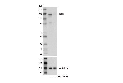 Western blot analysis of extracts from 293 cells, transfected with 100 nM SignalSilence<sup>®</sup> Control siRNA (Unconjugated) #6568 (-) or SignalSilence<sup>®</sup> RBL2 siRNA I # 14712 (+), using RBL2 (D9T7M) Rabbit mAb (upper) and α-Actinin (D6F6) XP<sup>®</sup> Rabbit mAb #6487 (lower). The RBL2 (D9T7M) Rabbit mAb confirms silencing of RBL2 expression, while the α-Actinin (D6F6) XP<sup>®</sup> Rabbit mAb is used as a loading control.