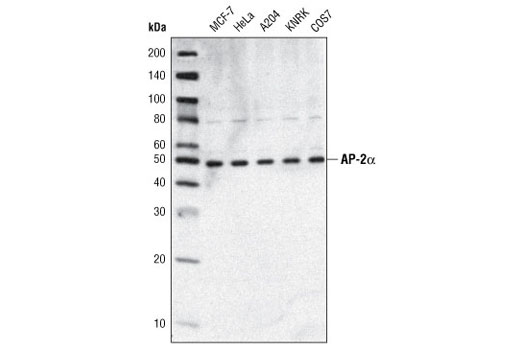 Western blot analysis of extracts from various cell types using AP-2α (C83E10) Rabbit mAb.