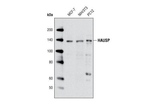Polyclonal Antibody Western Blotting Histone Deubiquitination