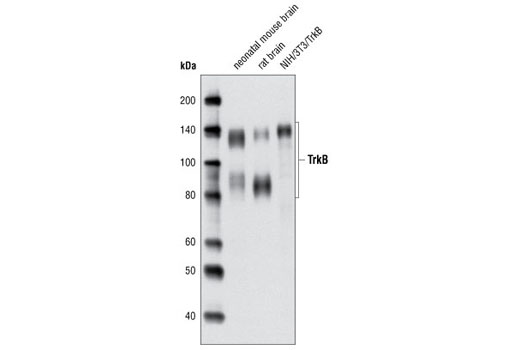 Western blot analysis of extracts from neonatal mouse brain, rat brain and NIH/3T3/TrkB cells using TrkB (80E3) Rabbit mAb.