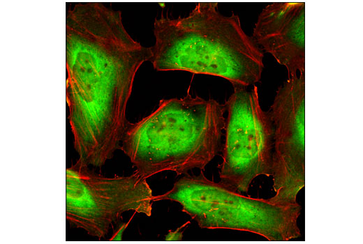 Confocal immunofluorescent analysis of HeLa cells using HSP90 (C45G5) Rabbit mAb (green) and β-Actin (8H10D10) Mouse mAb #3700 (red).