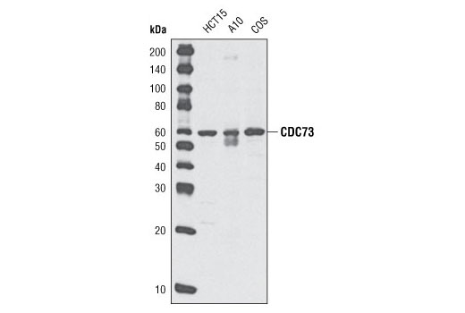 Western blot analysis of extracts from HCT15, A10 and COS cells using CDC73 (A264) Antibody.